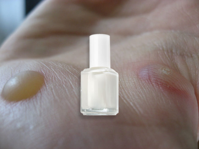 Some Want To Make Use Of Clear Nail Polish Eliminate Cussed Warts Simply Apply A Skinny Layer And Reapply As Wanted Suffocate The Spot