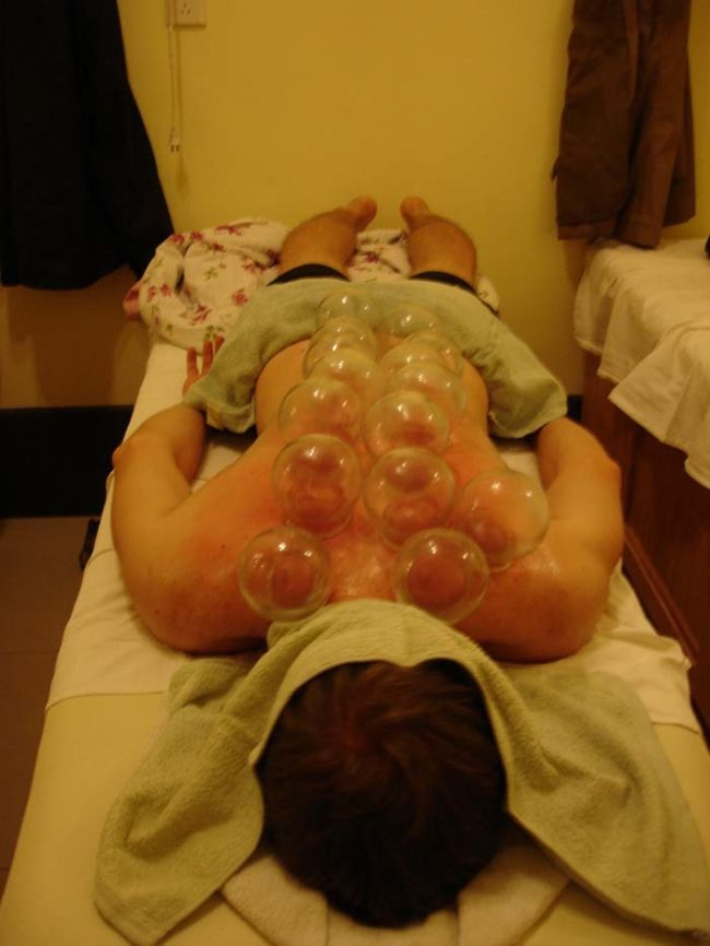 Fire cupping is an ancient form of therapy that is believed to promote healing and improve blood flow.