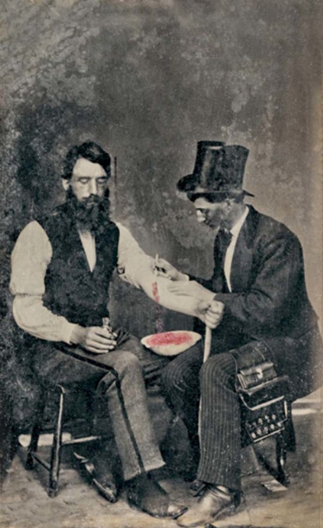 Medical advancements in the 19th century began to poke holes into theories surrounding the efficacy of bloodletting. However, despite the growing proof, the practice remained popular until the turn of the century.