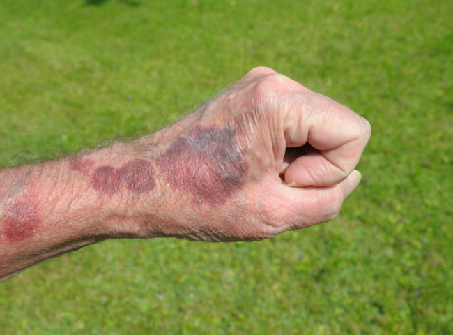 Darker bruising is much more serious and may require medical attention.
