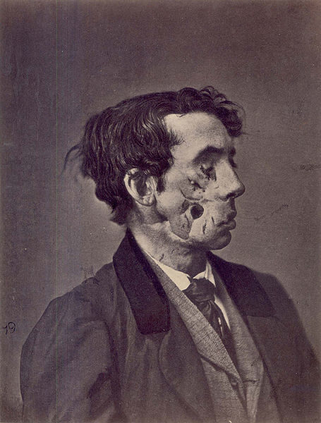 """This photo was taken two years after Private Joseph Harvey was shot in the face. A note with the photo <a href=""""https://commons.wikimedia.org/wiki/File:Civil_War_facial_wound.jpg"""" target=""""_blank"""">reads</a>, """"The loss of substance in the cheek was still unrepaired, and liquids and saliva escaped from it."""""""