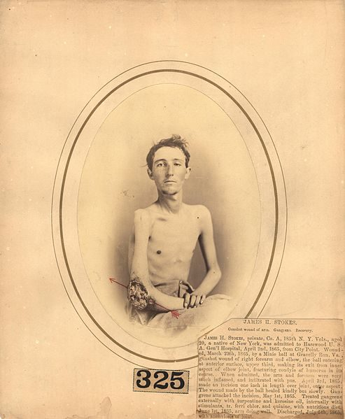 After this young man entered a Virginia hospital with gangrene in his elbow in 1865, the wound was treated with turpentine and kerosene oil. He survived, but was never able to use the joint again.