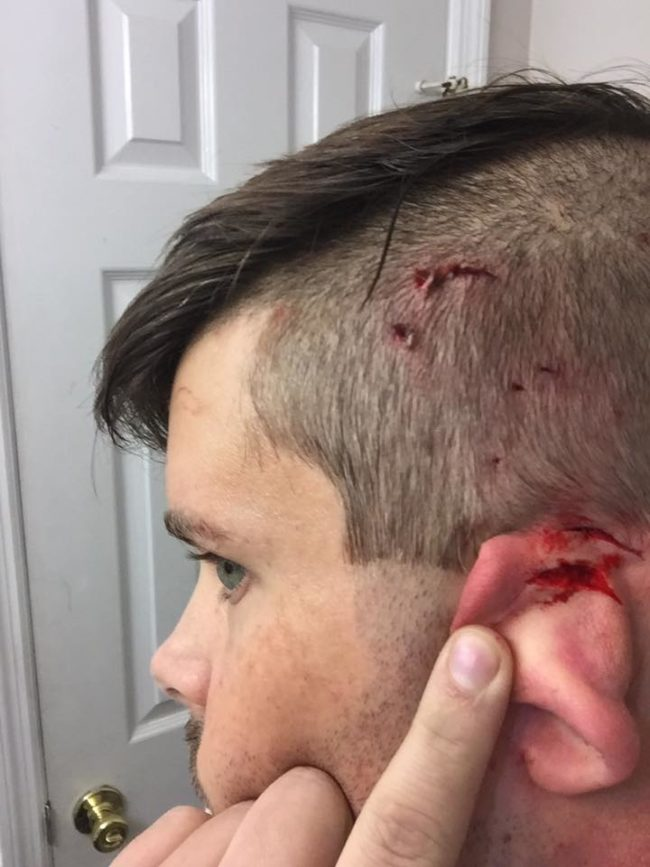 The cat's attack was so vicious that Woodard needed stitches afterward. He has a sense of humor about it all, making the photo of his injuries his Facebook profile picture.