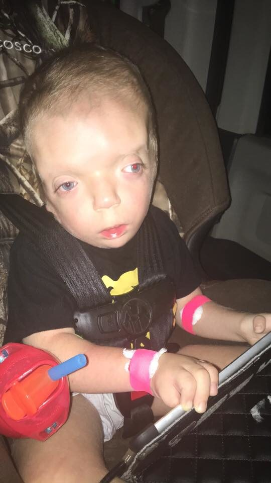 When Grayson Kole was born, doctors didn't expect him to live for more than two weeks. He had a combination of illnesses and conditions they had never seen before.