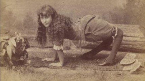"The first documented accounts of the deformity go back to the early 1800s.  In 1886, a girl named <a href=""https://en.wikipedia.org/wiki/Ella_Harper"" target=""_blank"">Ella Harper</a> was featured in a circus and called ""The Camel Girl"" because she walked on all fours."