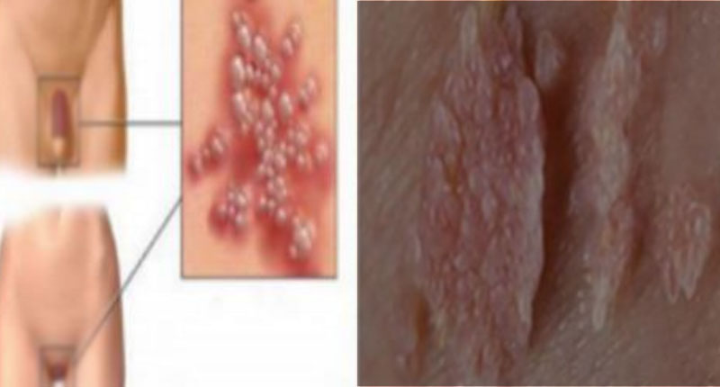 Hpv virus and oral sex — photo 6