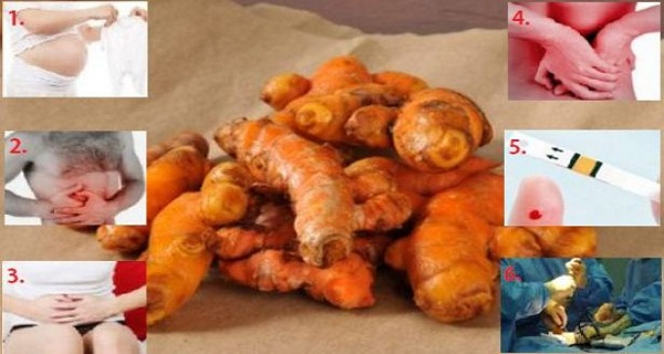 WARNING-STOP-USING-TURMERIC-IF-YOU-ARE-IN-THESE-6-TYPES-OF-PEOPLE
