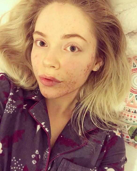 Ending acne naturally